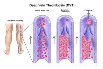 minimize-risk-for-Deep-Vein-Thrombosis